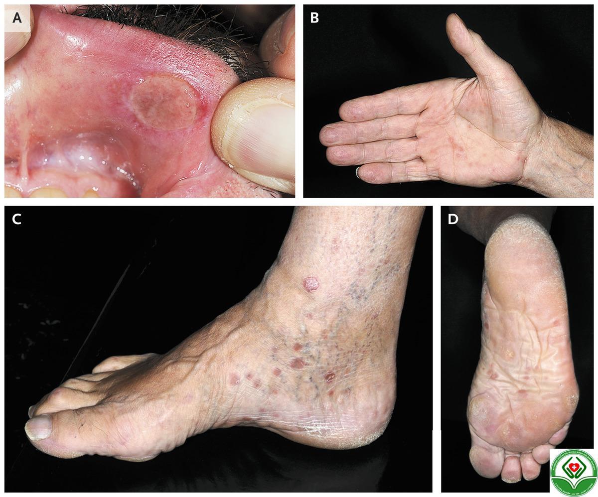 Các triệu chứng thường gặp của bệnh giang mai