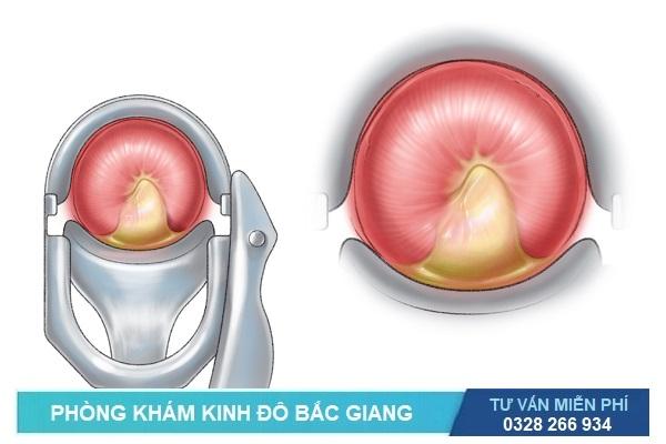 Triệu chứng của viêm cổ tử cung