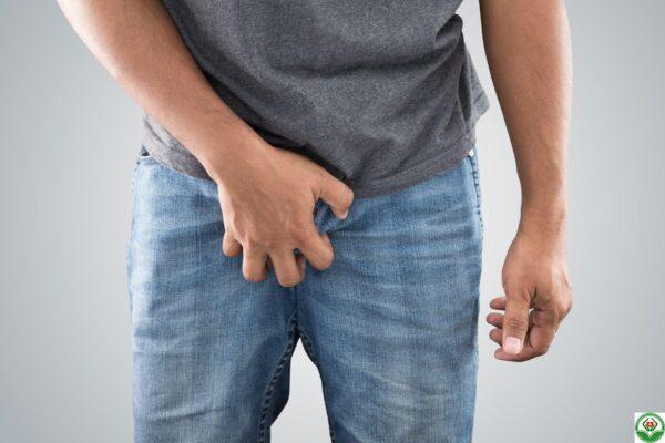 Ngứa bìu tinh hoàn do nhiều nguyên nhân gây ra