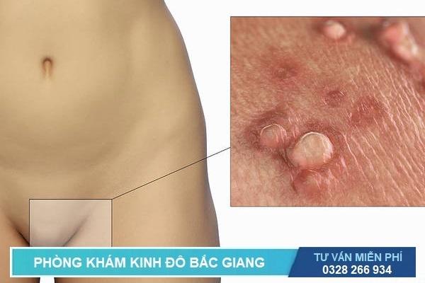 Các triệu chứng của bệnh sùi mào gà ở bộ phận sinh dục nữ