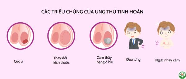 Các dấu hiệu, triệu chứng của ung thư tinh hoàn