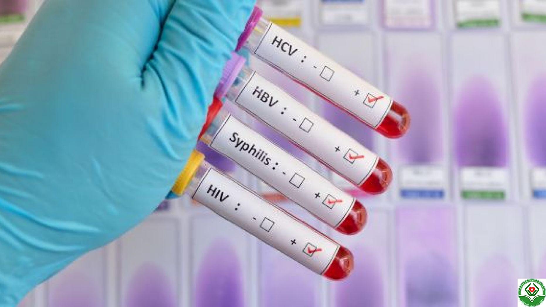 Các bệnh lây truyền qua đường tình dục: Có thể chữa khỏi và không thể chữa khỏi