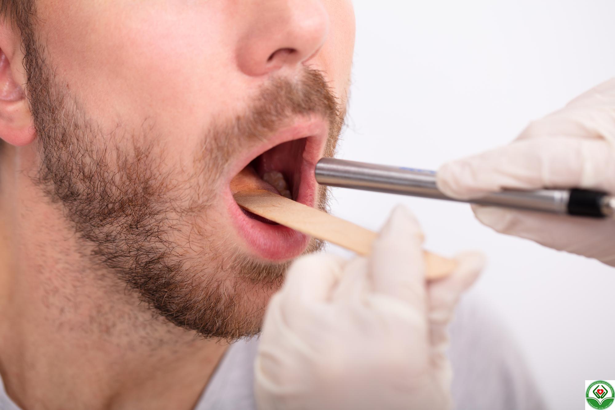 Bệnh lậu ở miệng: Chuẩn đoán, điều trị và ngăn ngừa như thế nào?