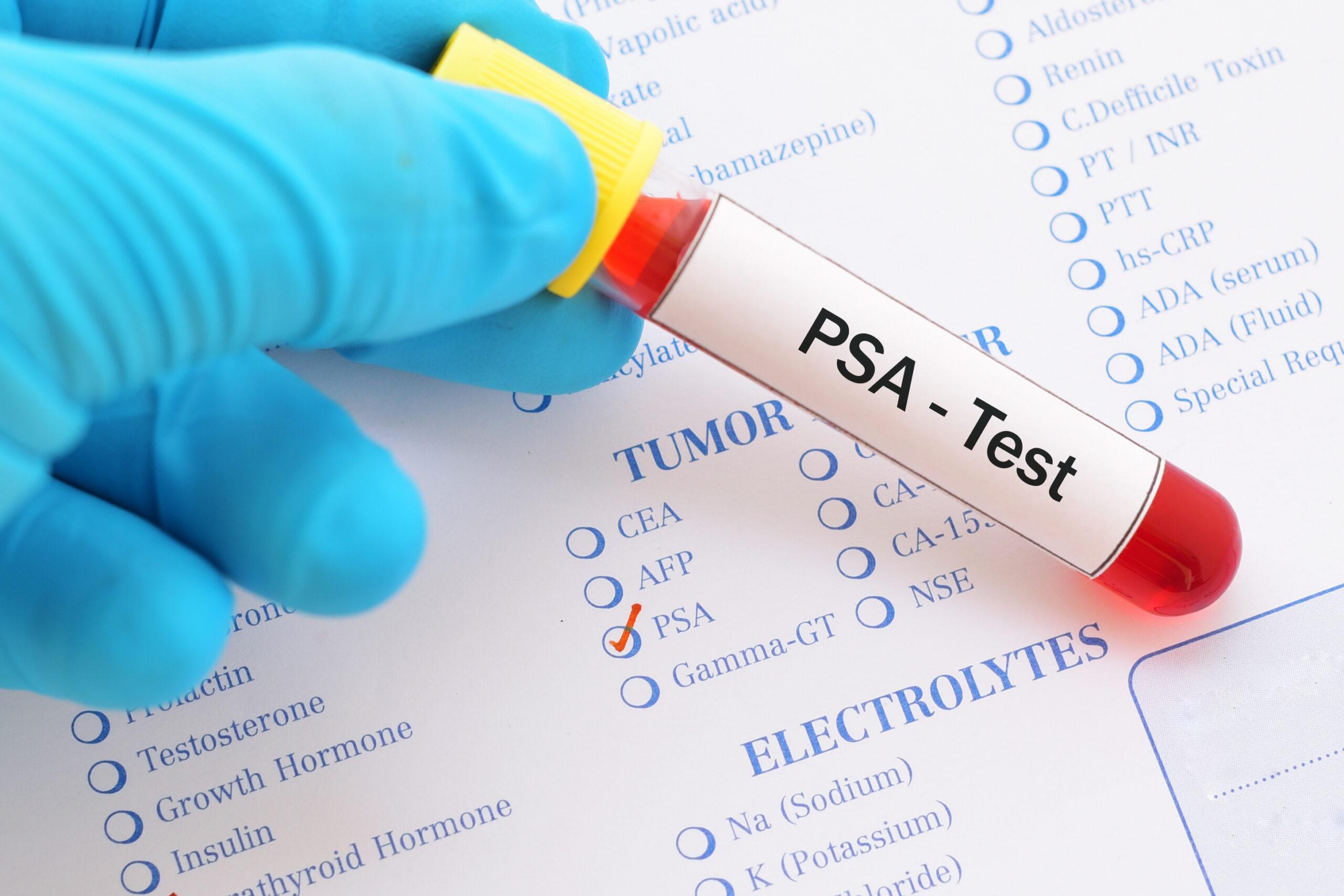 Xét nghiệm kháng nguyên đặc hiệu cho tuyến tiền liệt