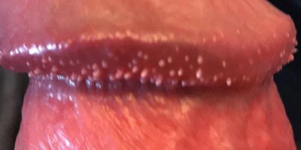 Chuỗi hạt ngọc dương vật