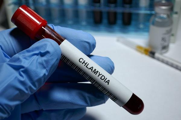 Điều gì xảy ra khi xét nghiệm chlamydia?