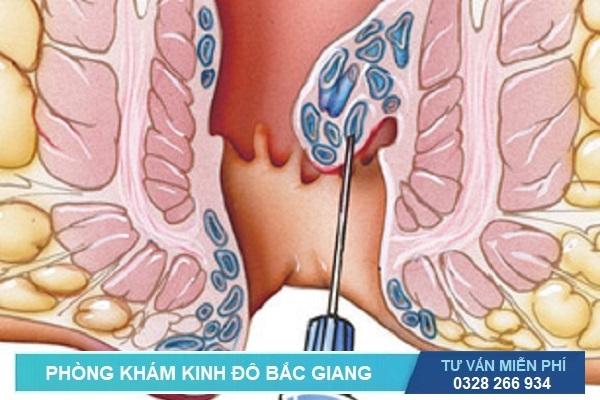 Các phương pháp phẫu thuật trĩ không cần gây mê