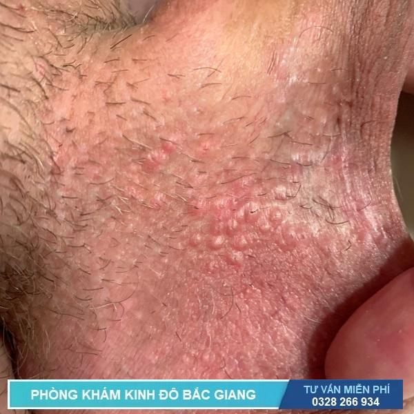Triệu chứng bệnh mụn rộp sinh dục giai đoạn đầu ở nam giới