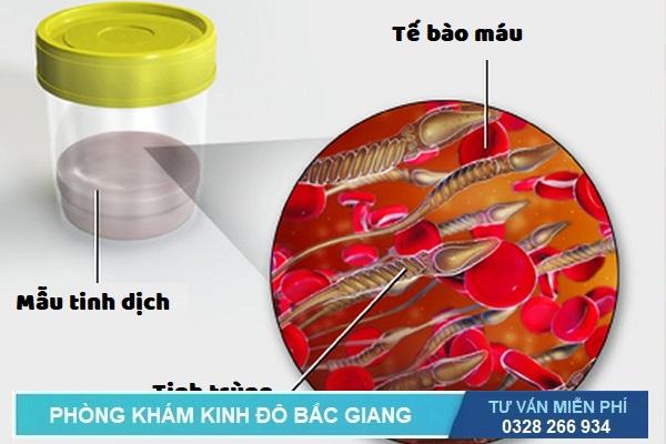 Phân tích mẫu máu trong tinh dịch giúp tìm ra bệnh