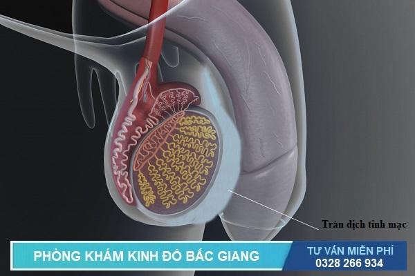 Tràn dịch tinh mạc là 1 trong các bệnh về tinh hoàn