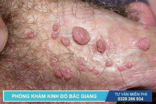Hình ảnh dấu hiệu nhận biết bệnh sùi mào gà ở dương vật của nam giới