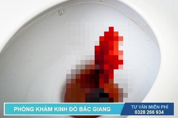 Đi ỉa ra máu trông như thế nào?