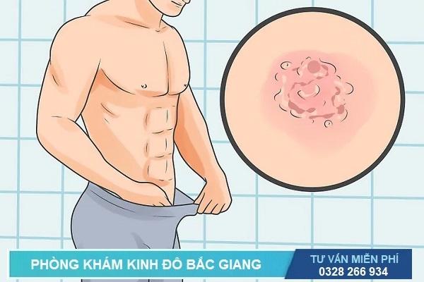 Xét nghiệm là cách duy nhất chuẩn đoán bệnh mụn rộp sinh dục