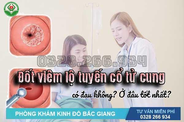 Đốt viêm lộ tuyến cổ tử cung là gì và ở đâu tốt nhất Bắc Giang?