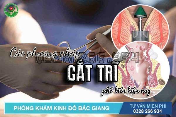 Các phương pháp cắt trĩ phổ biến hiệu quả nhất hiện nay